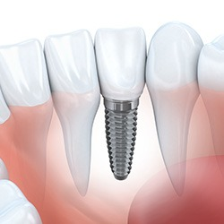 single dental implant cost