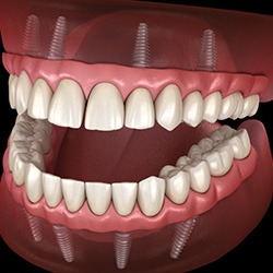 Care for Dental Implants and Gum Disease Prevention