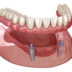 Finding Dental Implants for Seniors and Transforming Your Smile
